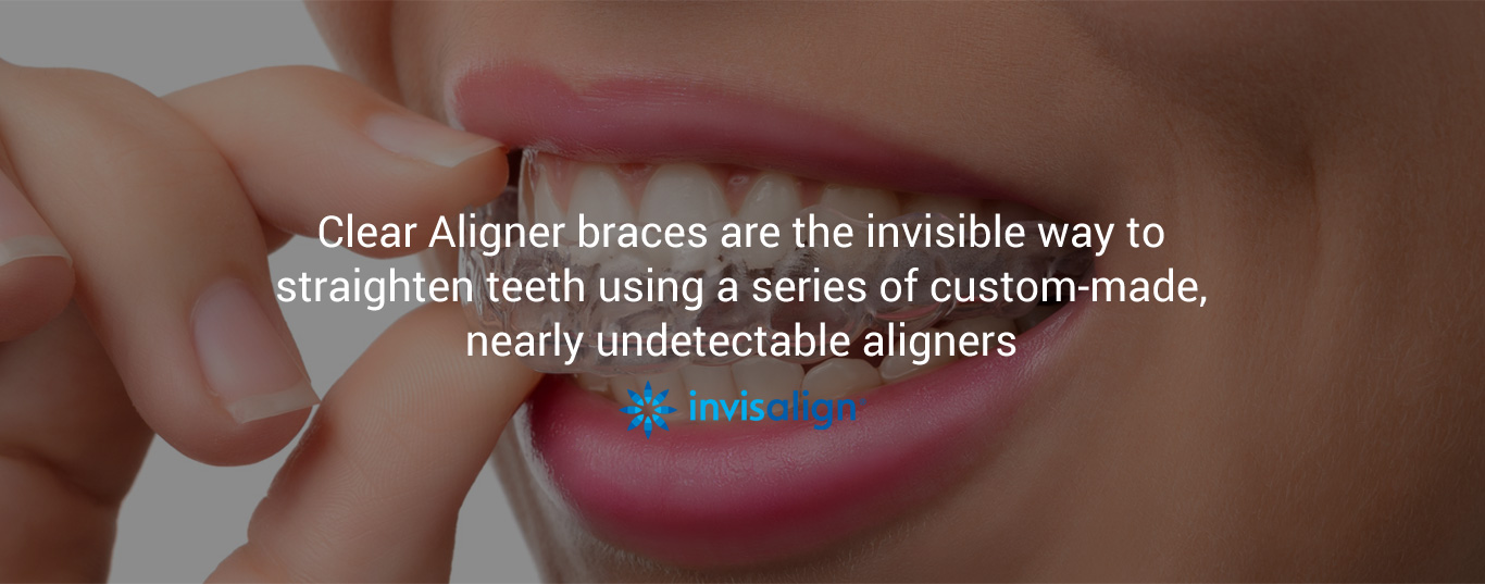 clear aligner braces